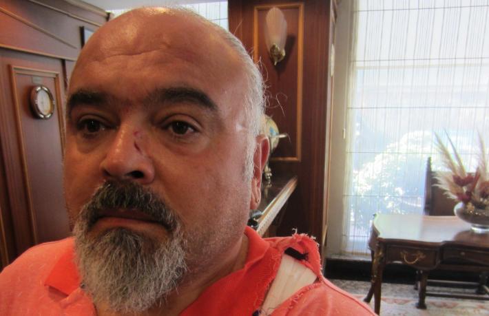 Turizmci Mehmet Gem'e çirkin saldırı