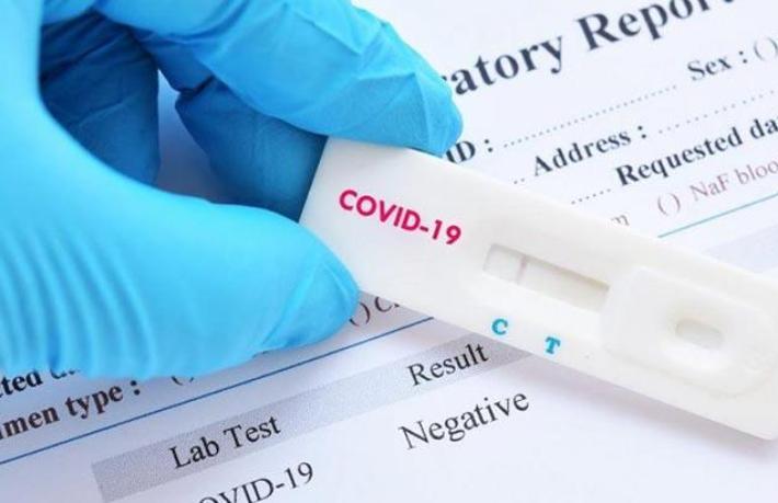 O şehirde turistlere PCR testi otellerde yapılacak