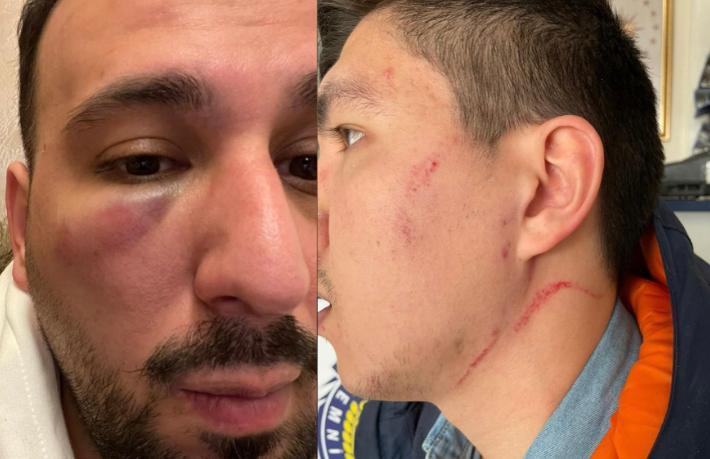 Otel patronu hırsızlıkla suçladığı iki çalışanını dövdü