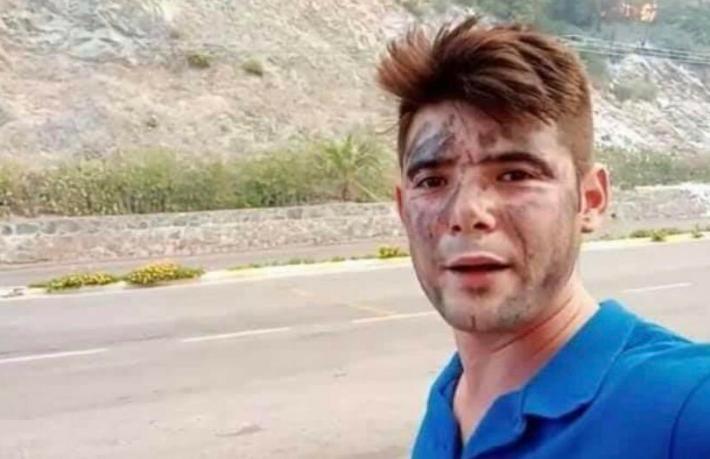 Genç turizmci alevlere müdahale ederken hayatını kaybetti